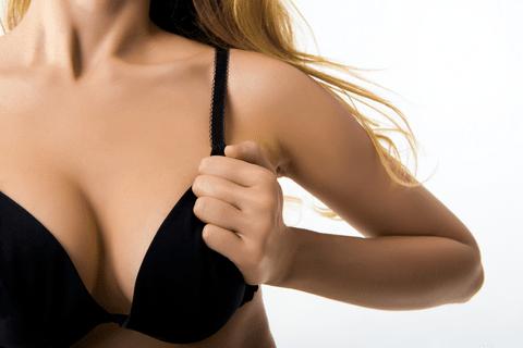 Résultat augmentation mammaire
