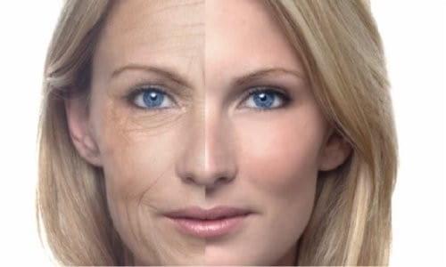 Définition lifting visage