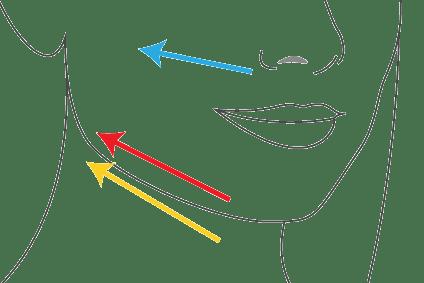 intervention lifting visage