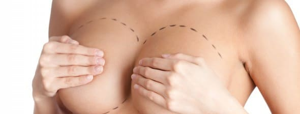 Définition augmentation mammaire