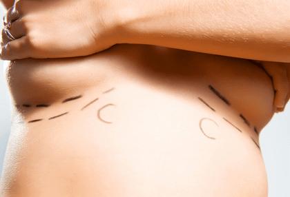 Réduction mammaire définition