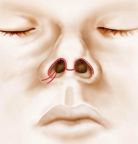 rhinoplastie intervention